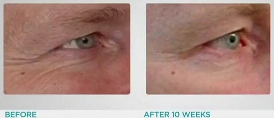 SpectraLite EyeCare Pro results