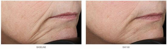 NuFACE-60-day-results
