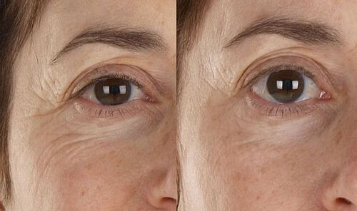 facefx-before-after