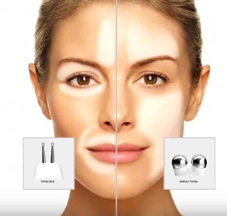 nuface-treatment-areas