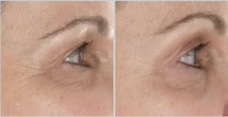 silk n facefx anti aging device