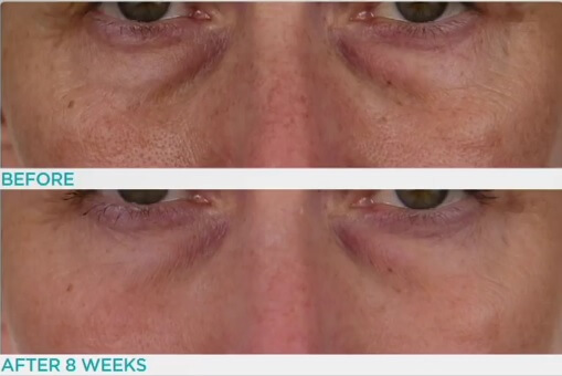 Conture Kinetic Skin Toning System Before After