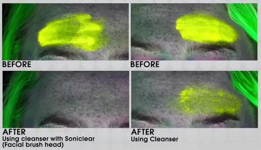 beofre-after-Michael-Todd-Soniclear-Elite-Skin-Cleansing-System