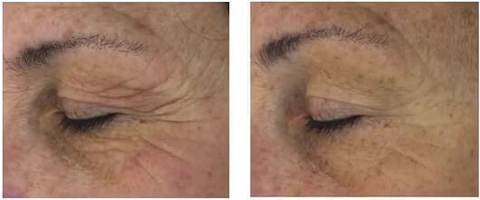 befora after 12 weeks SkinClinical Reverse Anti Aging Light Therapy