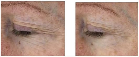 before after SkinClinical Reverse Anti Aging Light Therapy