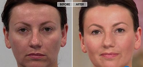 Nurse Jamie TRIangle Facial Beauty Tool before and after