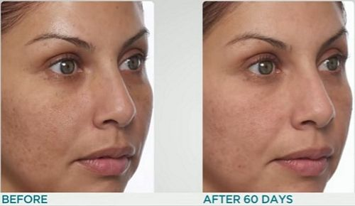 IlluMask-60-day-results