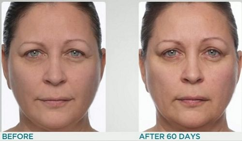 IlluMask-before-after