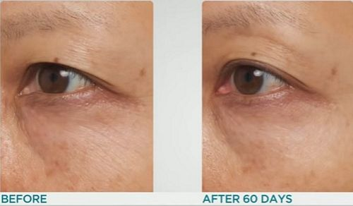 Light-Therapy-Mask-before-after