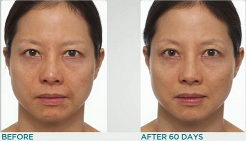 anti-aging-results
