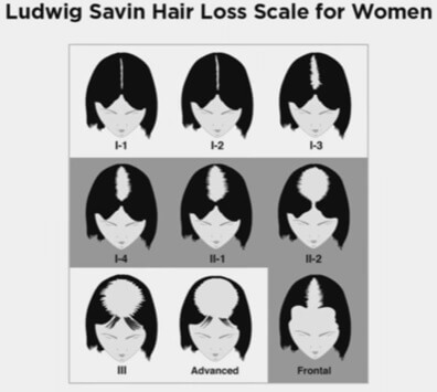 ludwig-savin-hair-loss-scale-for-women