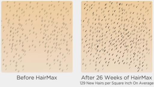 new-hair-growth