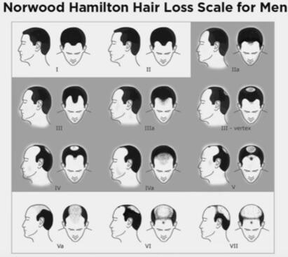 norwood-hamilton-hair-loss-scale-for-men