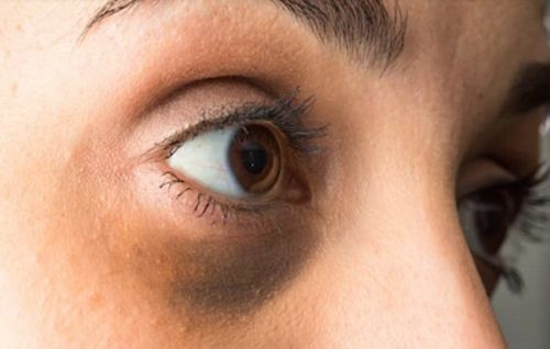 dark circles under the eyes causes and treatment