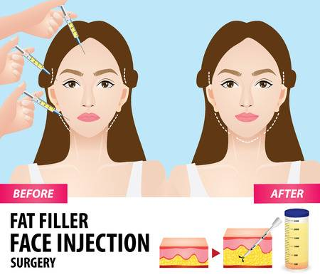 fat transfer benefits, before after