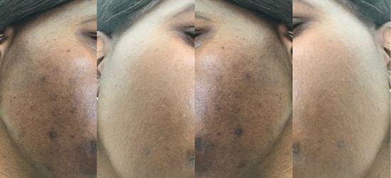 skin whitening results