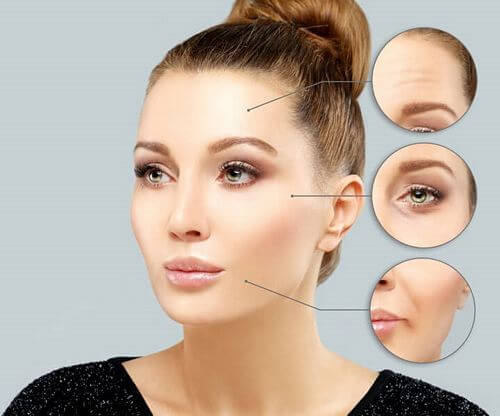 where to get botox injections on your face