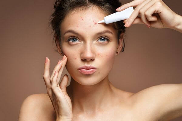 Salicylic Acid vs. Benzoyl Peroxide For Acne – Which is Better?