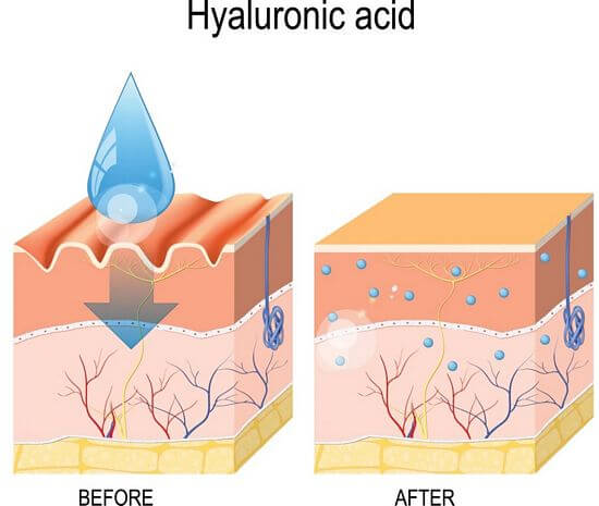 benefits of hyaluronic acid in skin care