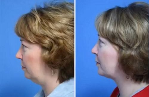 chin fat liposuction