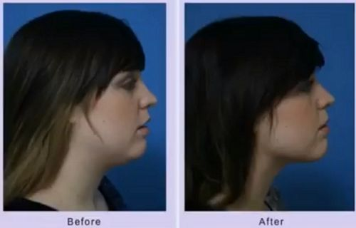 chin liposuction before after