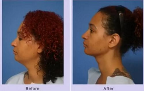 chin liposuction results