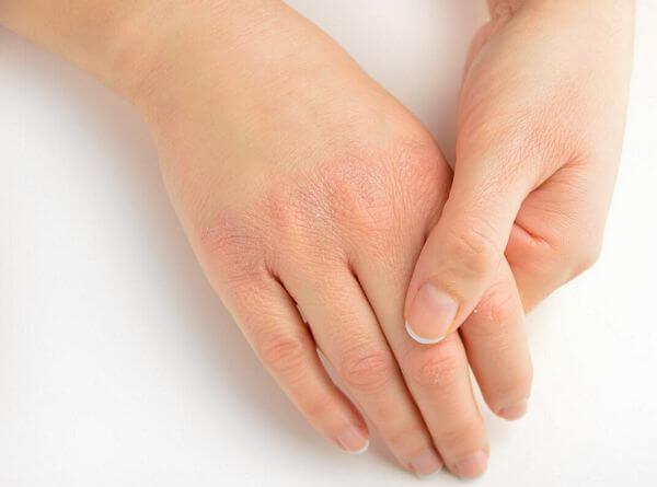 dry hand skin