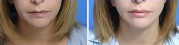 fat grafting for lips before and after