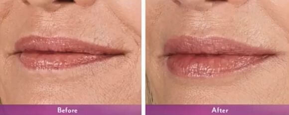 lip injections before after