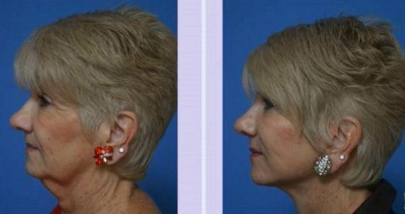 sagging neck skin surgery