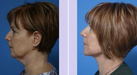 sagging neck skin treatments