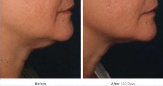 sagging neck skin ultherapy