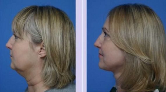 solutions for sagging neck