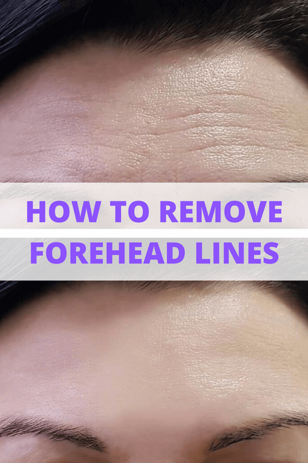 How to Reduce Forehead Lines