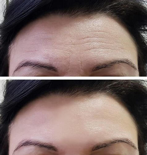 How to Remove Forehead Lines
