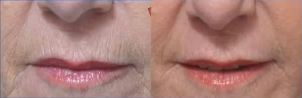 dermabrasion for lip wrinkles before after