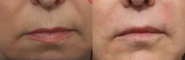 lip wrinkles before and after