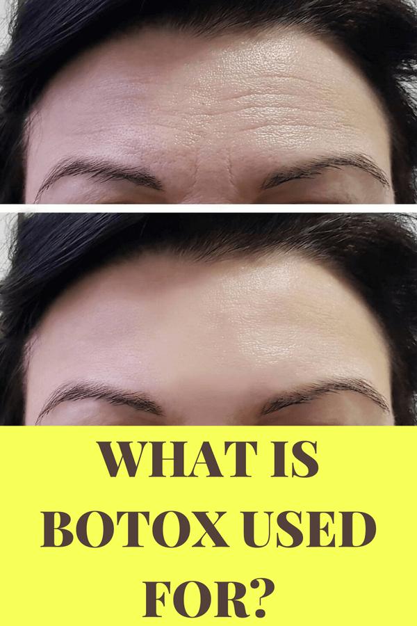 botox-use
