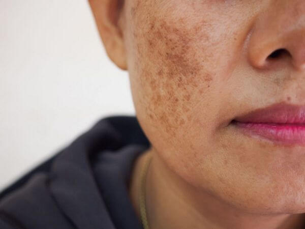 How to Get Rid of Melasma on Face