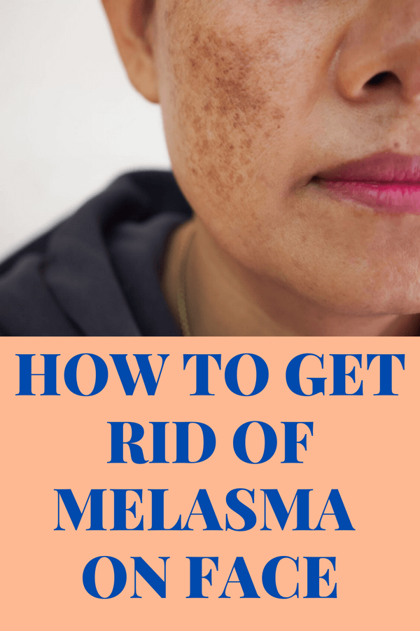 how-to-treat-melasma-on-face