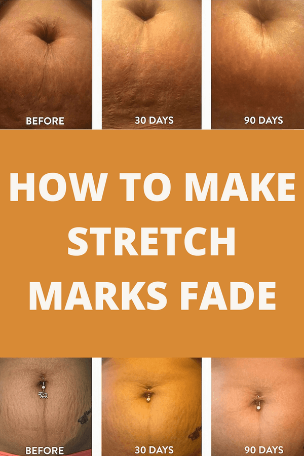 what fades stretch marks the best?