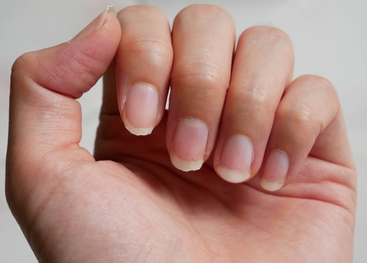 How to Make Nails Less Brittle