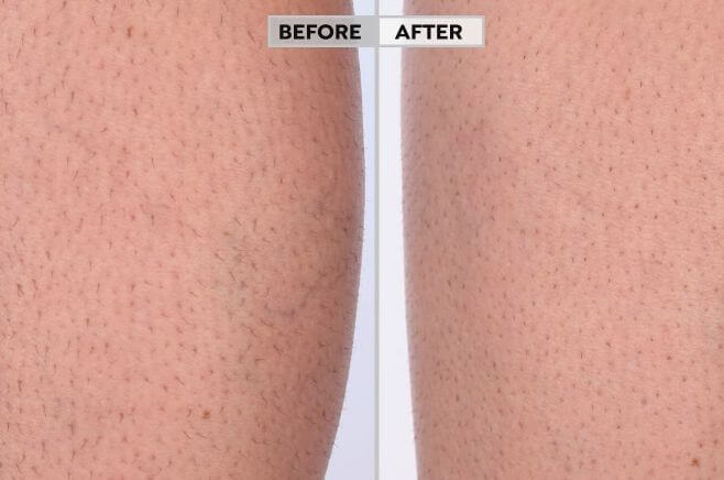 HPL hair removal before after