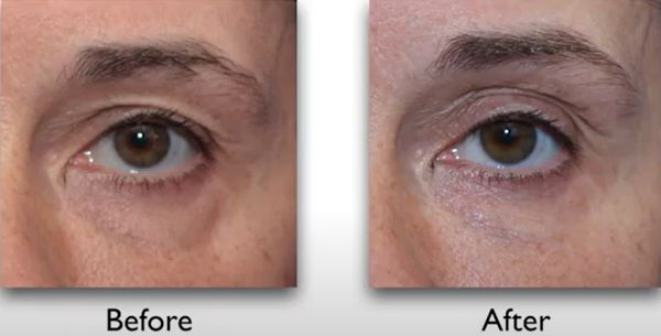 Botox brow lift before after