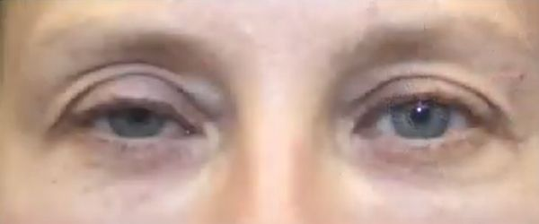 how to fix drooping eyelids