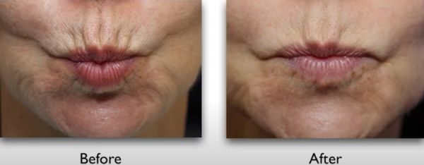 vertical lip lines before after