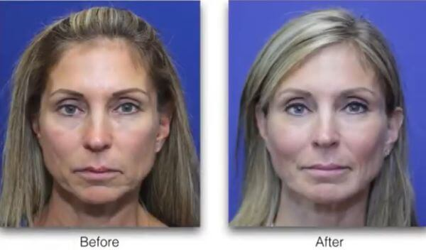 cheek-implants-before-and-after
