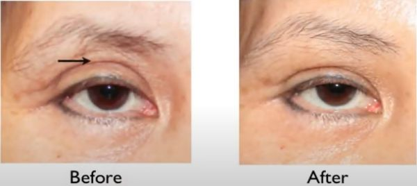 facial-fat-grafting-before-and-after