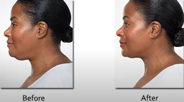 Kybella double chin before after results