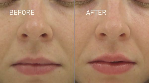 lip-gloss-before-after